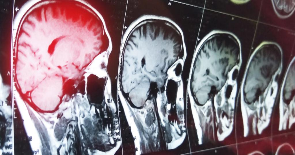 Adjusting After a Traumatic Brain Injury
